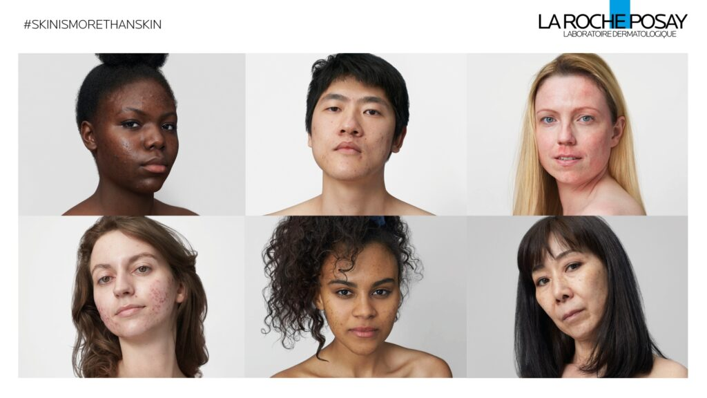 """""""Skin Is More Than Skin""""  by BETC and La Roche-Posay"""